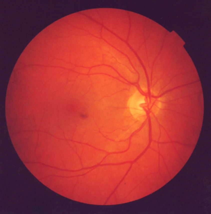 Normal Fundoscopic Exam Ocular examFundoscopic Exam