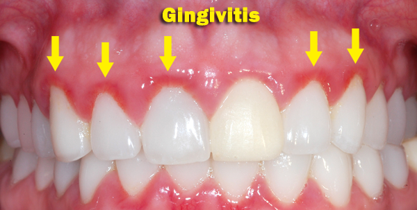 Patient with Gingivitis