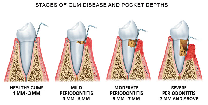 Stages of periodontal disease and periodontal pocket depth