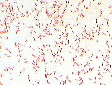 Ricerche correlate a positivita escherichia coli e klebsiella