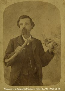 Dr. Still is shown holding a femur and pelvis. Museum of Osteopathic Medicine [1998.20.01]